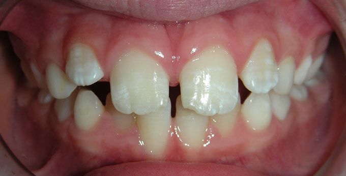 After treatment for traumatic deep bite with a plate (upper removable appliance)